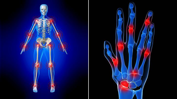 arthritis ayurveda